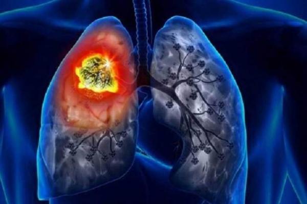 چند کلید طلایی برای محافظت از ریه