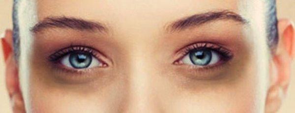 دلیل حلقه های تیره پای چشم چیست؟